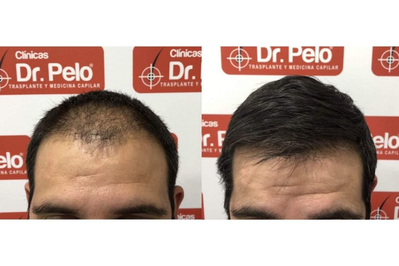 Señales de alopecia por el Dr. Pelo