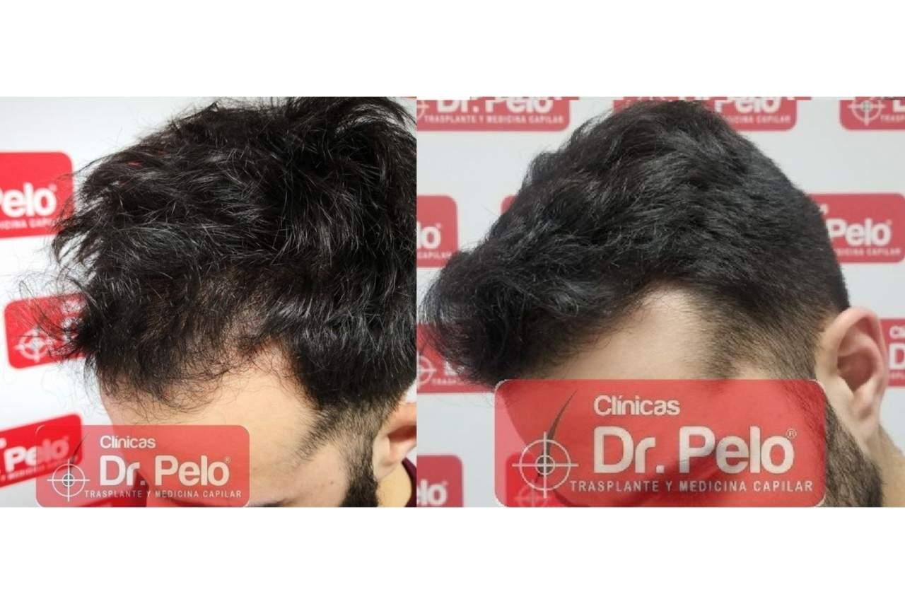 Trasplante capilar en Madrid con Clínicas Dr. Pelo