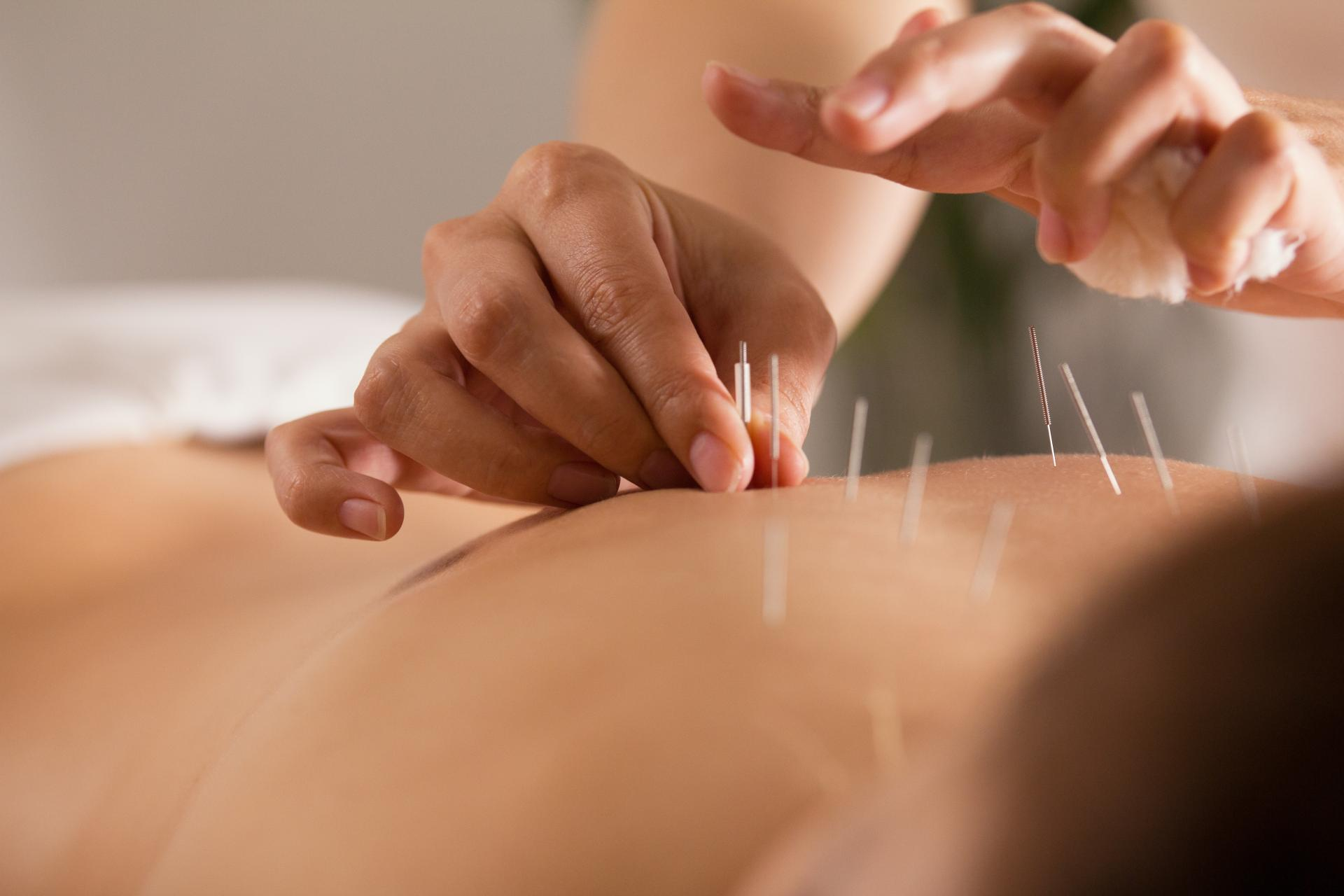 Tipos de terapias alternativas en Mallorca ofrecidas por el centro Kikai Acupuntura Mallorca